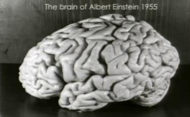 Einstein_brain_-_T.Harvey